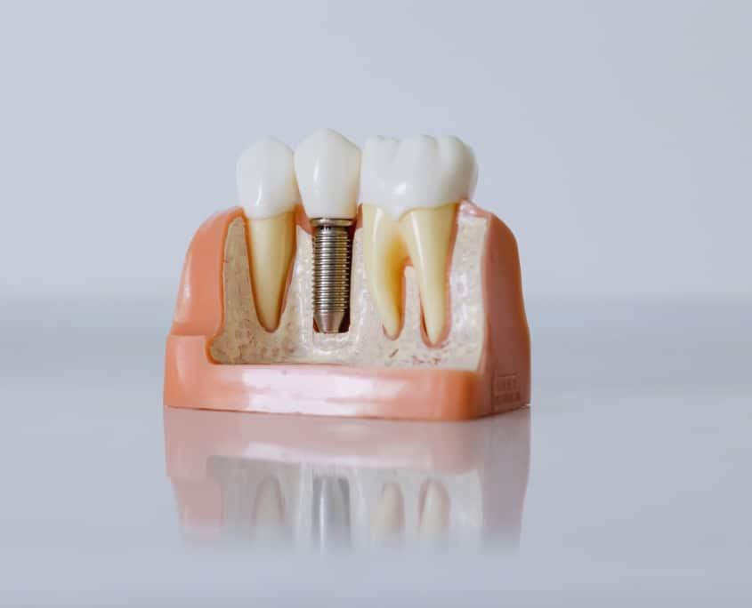 Maqueta piezas dentales, implante y encías